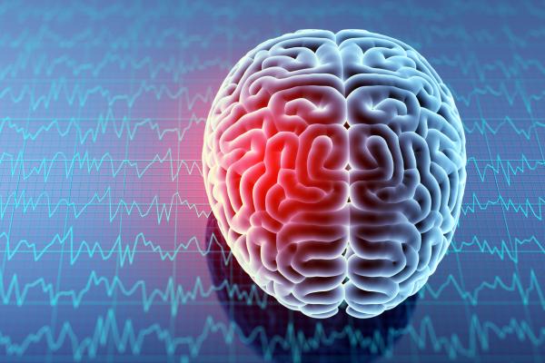 Mri brain with headache